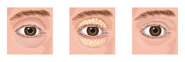 cirurgia de palpebra
