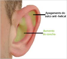 orelha de abano