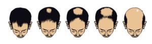 progressão da calvície masculina