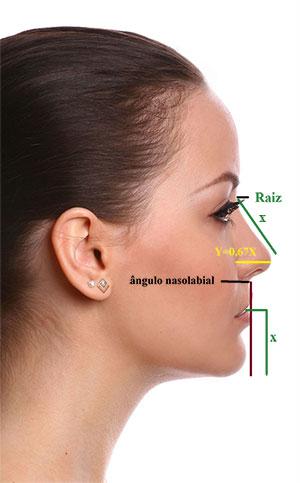 rinoplastia lateral