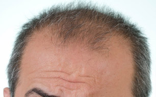 Estresse X queda de cabelos