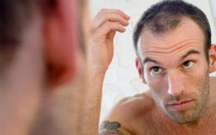 Idade para implante capilar