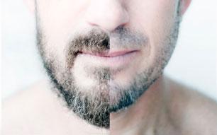 Reconstrução de Barba